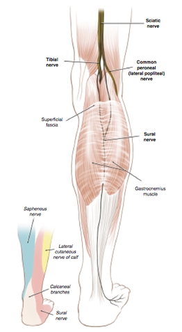 irritation or neuroma of the sural nerve - posterior foot pain, Human Body
